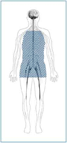 Autonomic neuropathy affects the nerves in your lungs, heart, stomach, intestines, bladder, and sex organs.